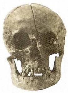 Lebka Přemysla Otakara II. s dobře patrným smrtelným zraněním.